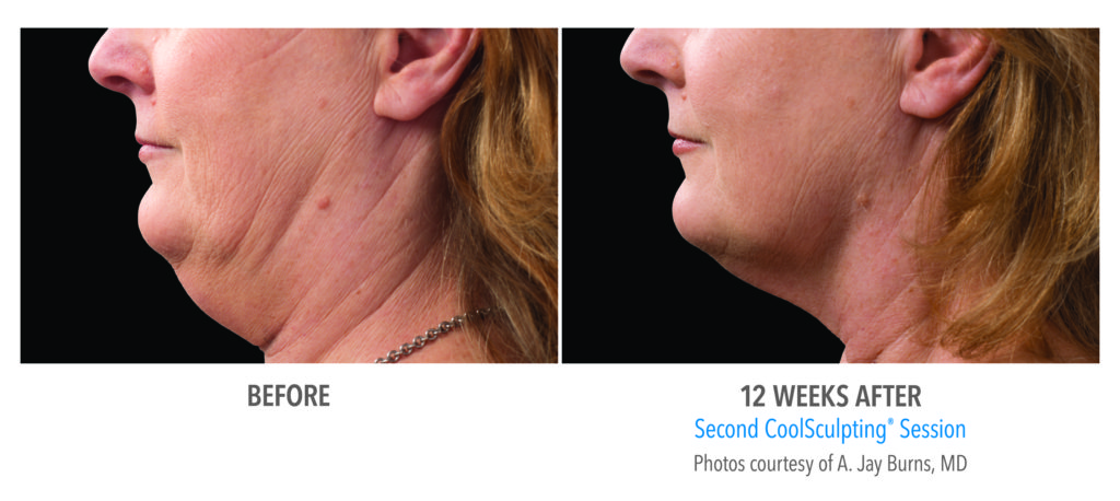 Before and After Chin Coolsculpting