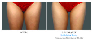 Before and After Thigh Coolsculpting